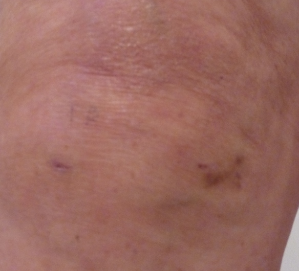 Just over a week later this is all that can be seen of my knee operation.